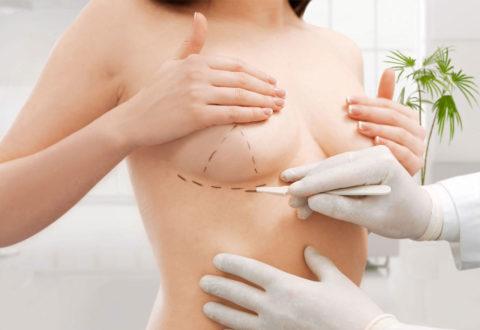 Breast Reduction Turkey