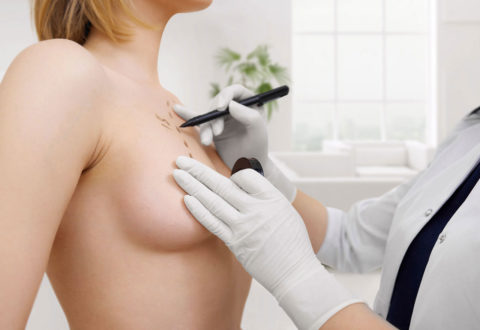 Breast Surgery istanbul