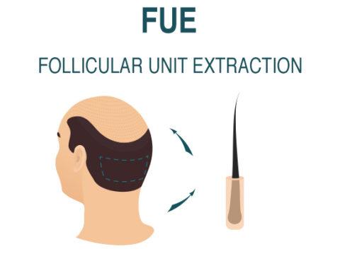Hair transplant FUE Method