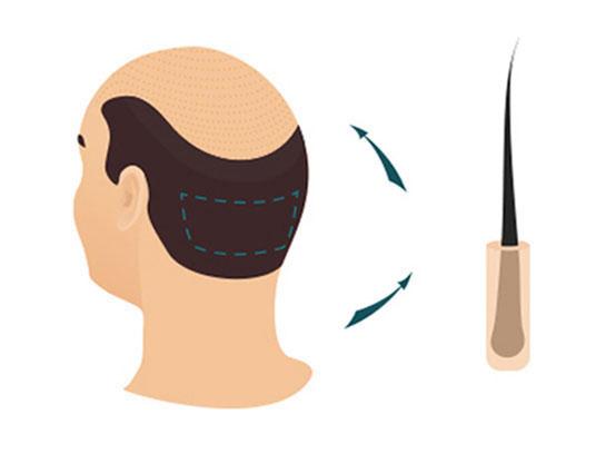 Hair Transplant Fue Technique