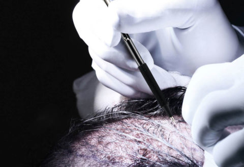 Hair Transplant Perkutan FUE Technique