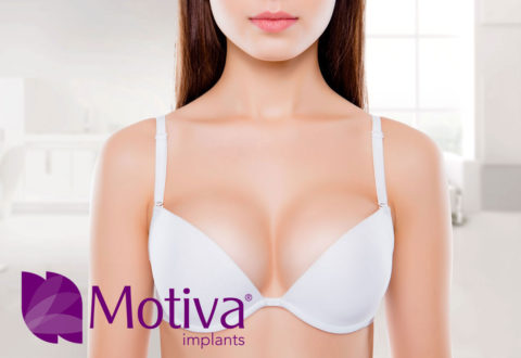 Motiva Implants Turkey
